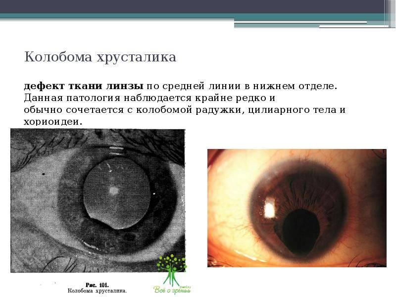 Симптомы, диагностика и лечение колобомы глаз