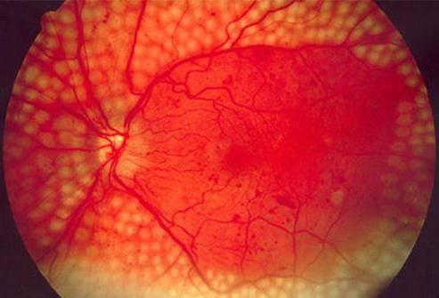 Кровоизлияние в стекловидное тело глаза - причины и лечение