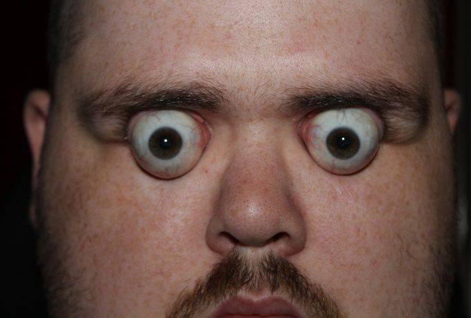 Глаза на выкате: причины и фото, как называется болезнь?