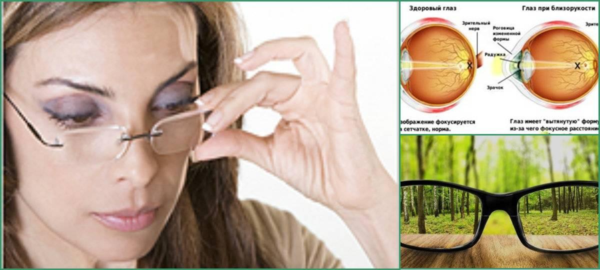 Пелена в глазах: расплывчатое зрение, причины размытого изображения в одном, расплывается боковое и плохо видит, расплывчатость