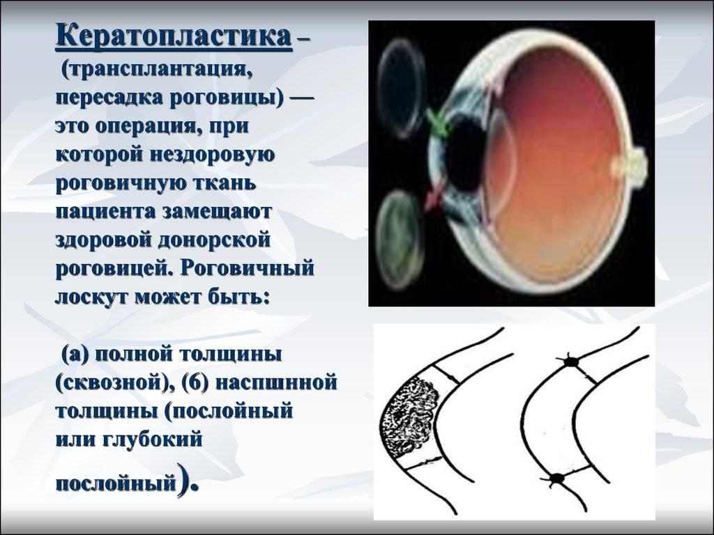 Кератопластика роговицы: как проходит операция, показания и цены