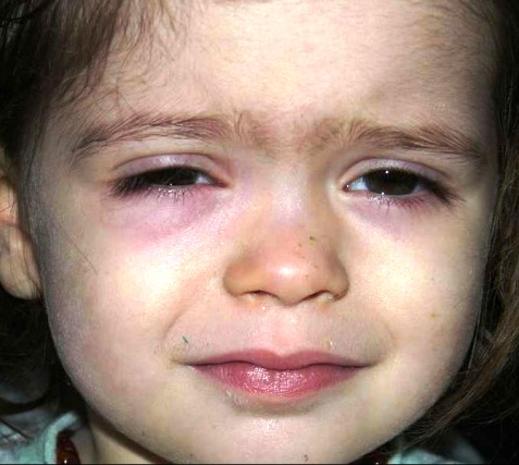 Почему возникают синяки под глазами у ребёнка: 10 основных причин