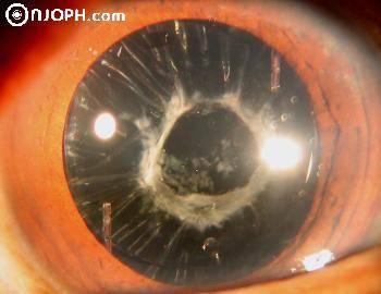 Лечение фиброз задней капсулы глаза