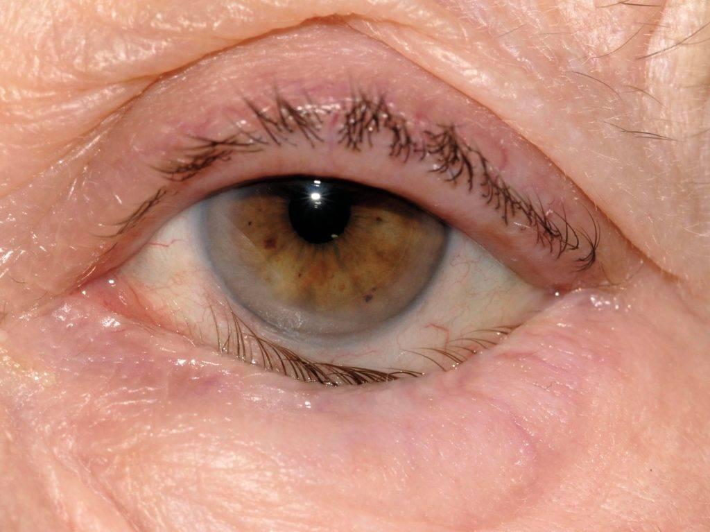 Аккуратнее со зрением: причины и заболевания, из-за которых щиплет глаза и они слезятся