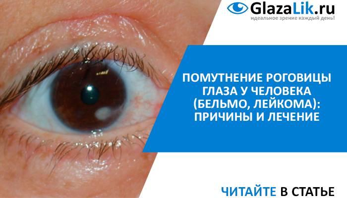 Помутнение роговицы глаза (бельмо)