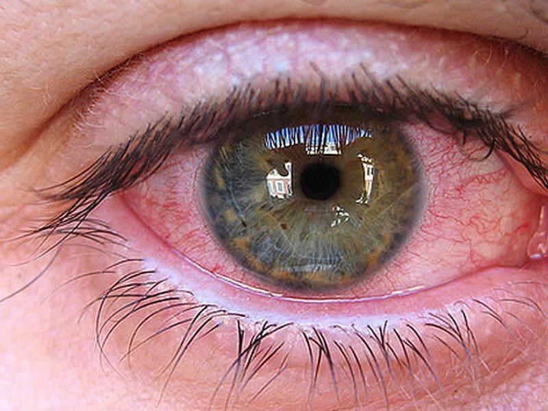 Если глаза красные от компьютера: что делать? несколько простых советов и упражнений