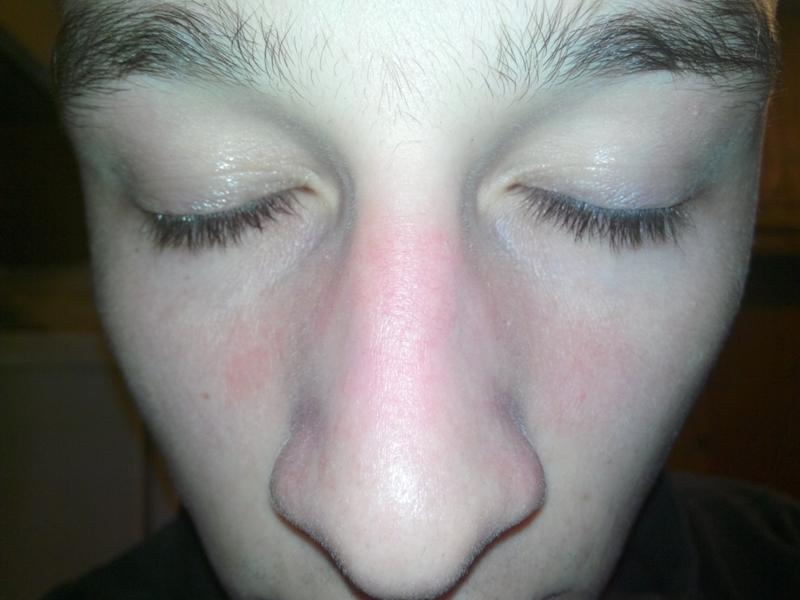 Шелушится кожа вокруг глаз