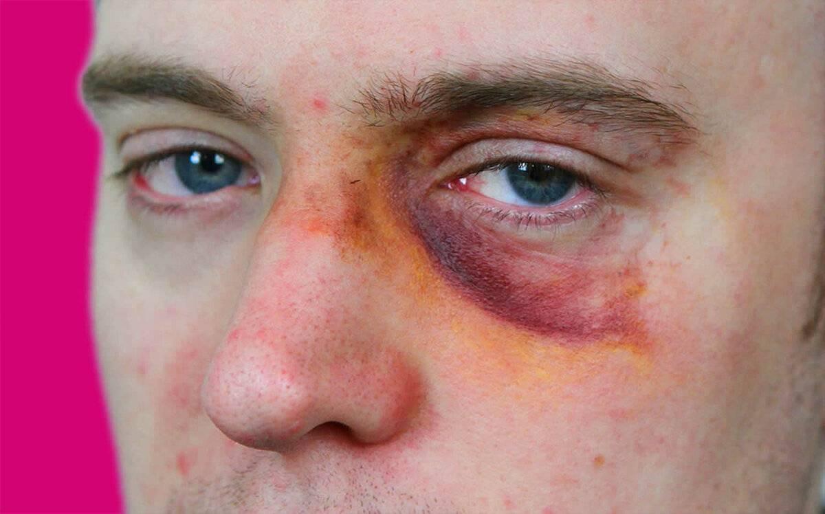 Резко перестал видеть один глаз причины – лечение артроза и артрита, лечение подагры