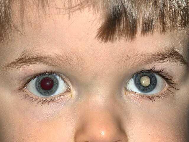 Ретинобластома: симптомы у детей, лечение глаза, причины