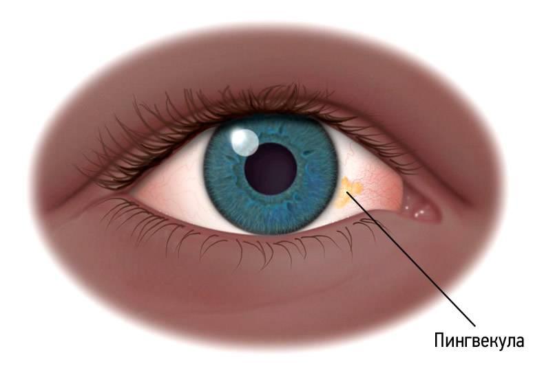Пингвекула: лечение глаз каплями, методы удаления, причины возникновения недуга