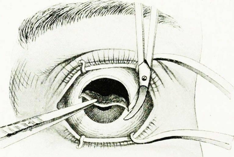 """Операция по удалению глаза: как проходит - """"здоровое око"""""""