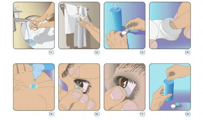 Сколько можно носить ночные линзы для коррекции зрения, как за ними ухаживать