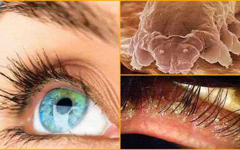 Демодекоз век у человека – причины, симптомы и лечение (фото)