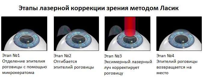 Операция ласик: лазерной коррекция и послеоперационный период