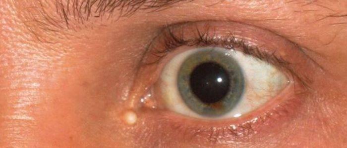 Киста на глазу: симптомы, причины и методы лечения