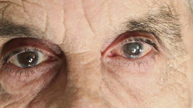 Незрелая катаракта: лечение возрастной (старческой) патологии, причины, симптомы