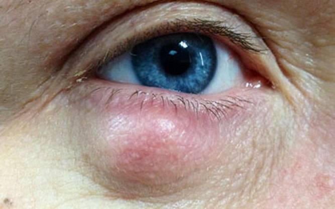 Шишка на веке глаза: причины появления уплотнения, симптомы нароста и лечение ячменя