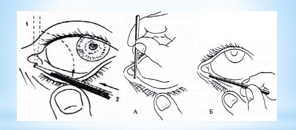 Зондирование глаз новорожденных при дакриоцистите