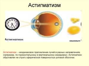 Особенности лечения астигматизма у взрослых