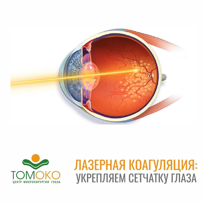 Проведение лазерного укрепления сетчатки глаза