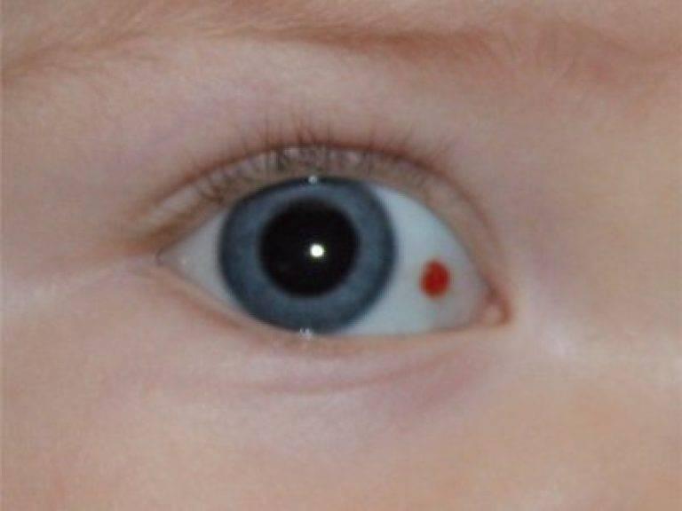 Красные пятна под глазами у ребенка: причины их появления, точек, прыщиков и различного рода сыпи на веках