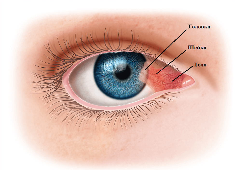 Птергиум глаза - причины, симптомы и лечение нарушения