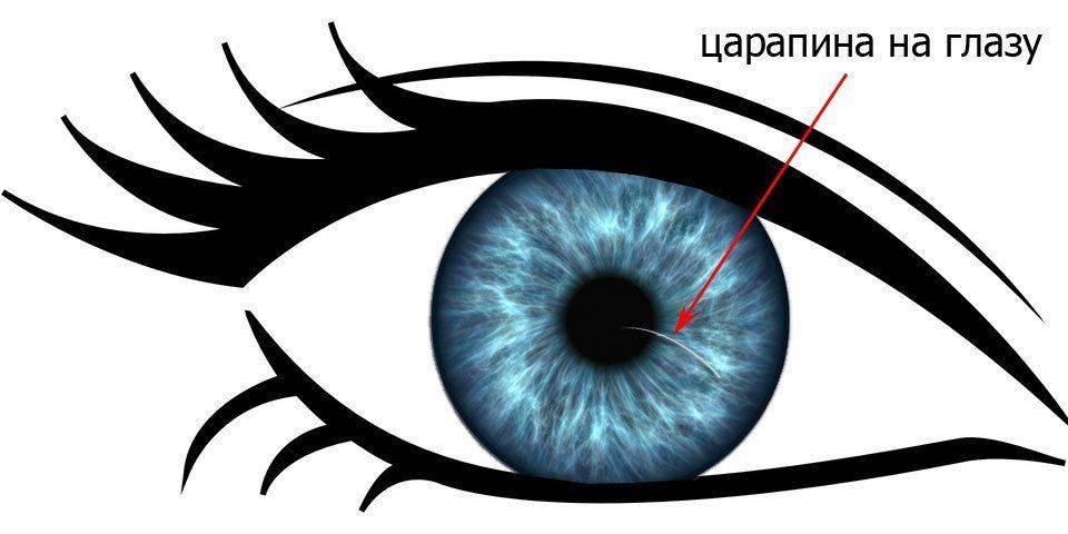 Повреждение роговицы глаза как долго заживает. патология у ребенка. лечение при повреждении роговицы глаза - человек и здоровье