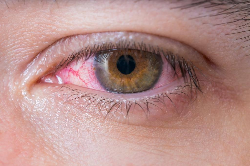 Ощущение инородного тела в глазу – причины и лечение