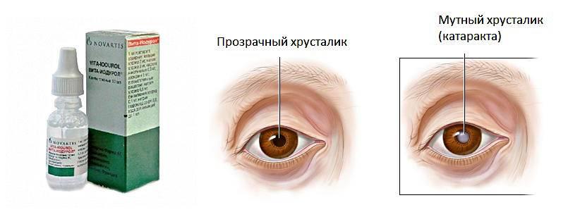 Вита-йодурол глазные капли: цена, инструкция, отзывы и аналоги