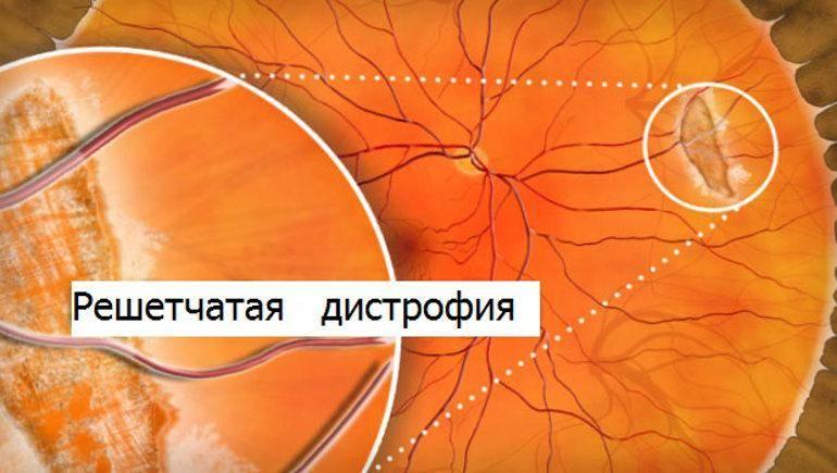 Кровоизлияние в сетчатку глаза - причины, симптомы и лечение