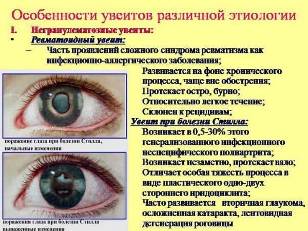 Миозит - симптомы, лечение, причины болезни, первые признаки