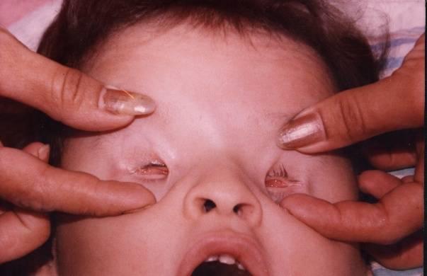 Экзофтальм – причины, симптомы, лечение, виды, диагностика
