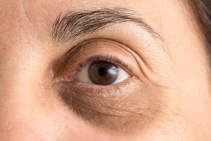 Желтые круги под глазами — причины появления
