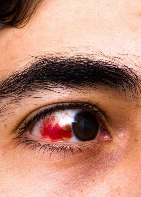 Кровь в глазу: причины и симптомы кровоизлияния, как лечить