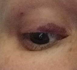 Лопнул сосуд под глазом и образовался синяк - что делать
