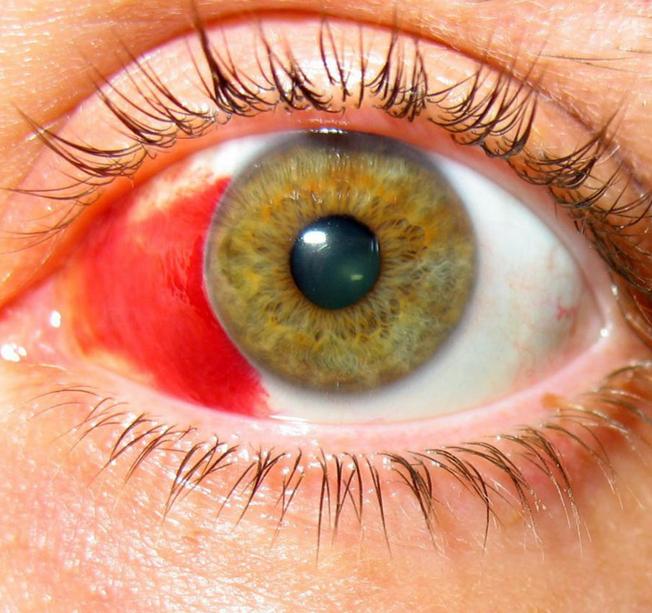 Кровь в глазу как убрать | здоровье сердца