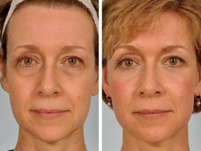 Блефаропластика трансконъюктивальная – (щадящее) устранение мешков под глазами