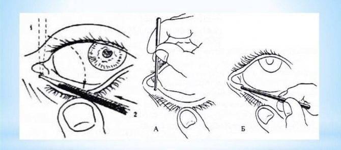 Доктор комаровский о массаже слезного канала у новорожденных