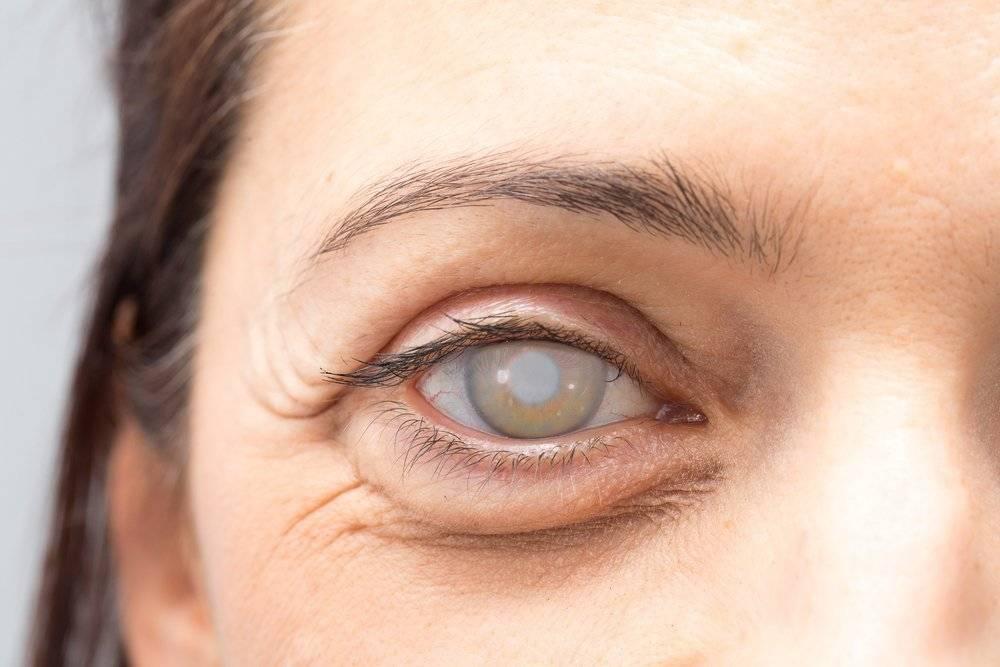 Способы вылечить катаракту без операции
