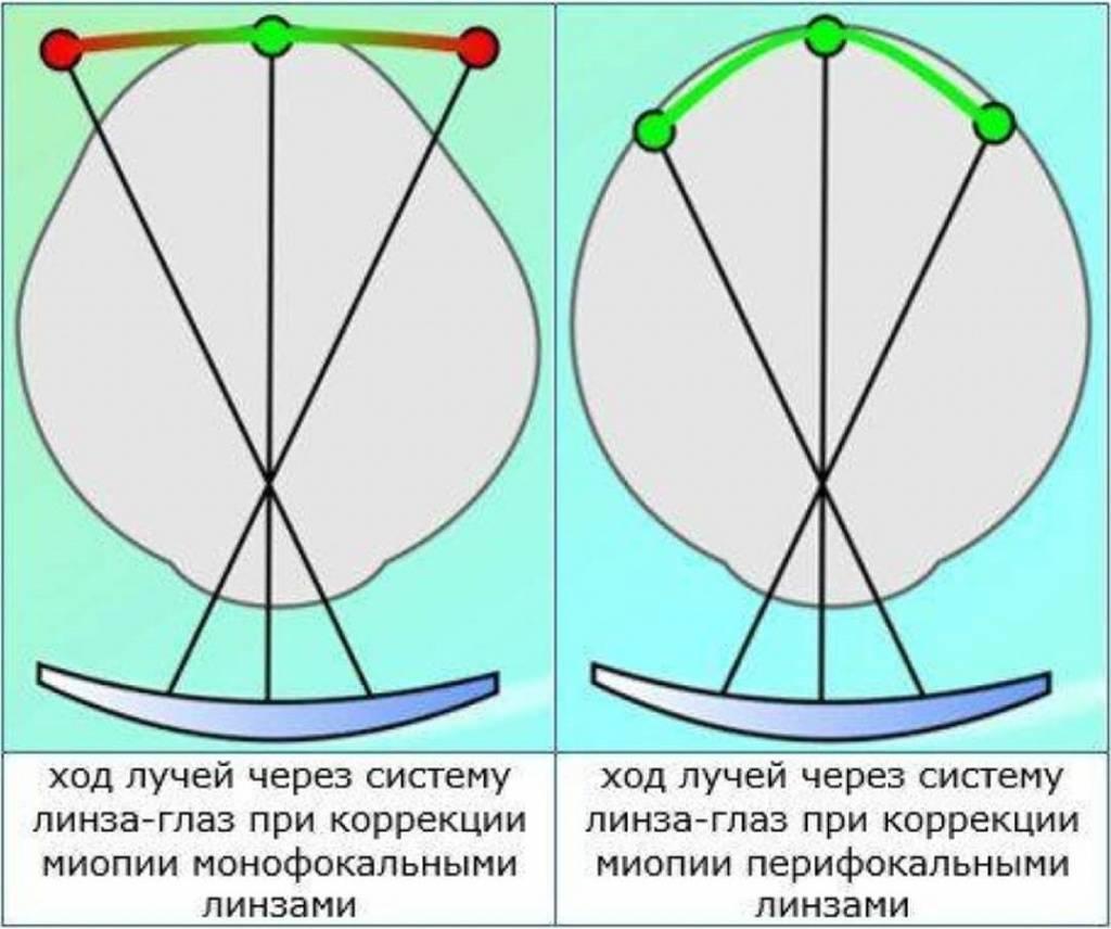 Перифокальные линзы для очков, бифокальные для детей - эссилор, перифокал м: отзывы