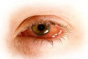 Хемоз конъюнктивы - что это, лечение, причины и симптомы
