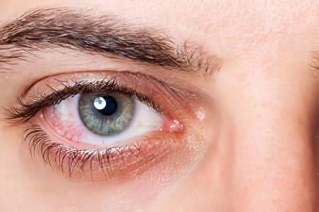 Лопнули капилляры в глазах, что делать?