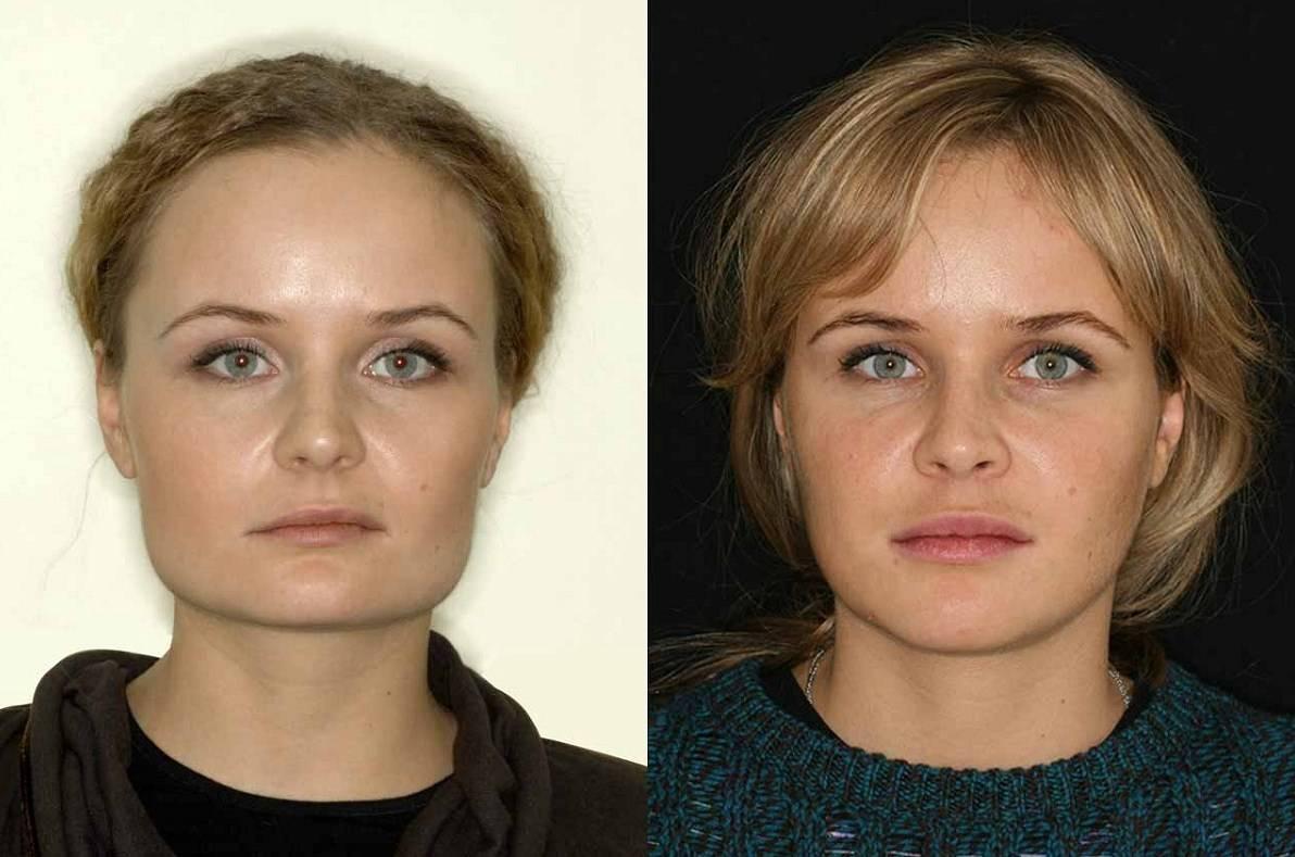 Асимметрия лица (причины и лечение)
