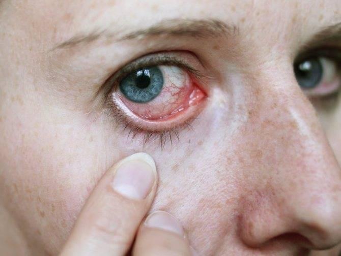 Снять воспаление глаза в домашних условиях
