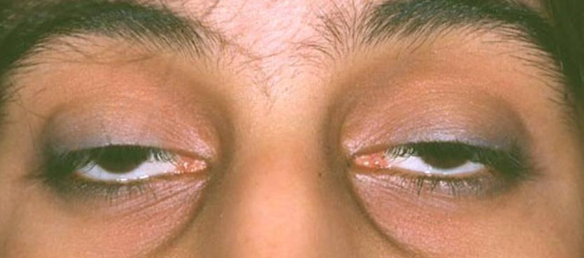Блефарит (воспаление края век): причины, симптомы и эффективное лечение