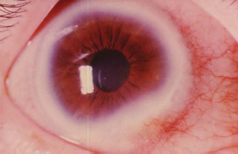 Дистрофия роговицы глаза - лечебные линзы при дистрофии роговицы, капли и народные средства | медицинский портал spacehealth