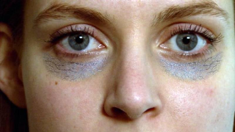 Мезотерапия от темных кругов и синяков под глазами