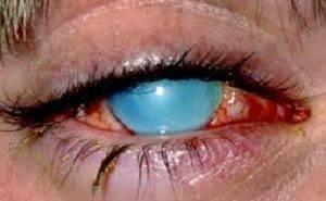Что делать, если в глаза попал шампунь, мыло, моющее средство, пена, как и чем промыть, опасно ли это
