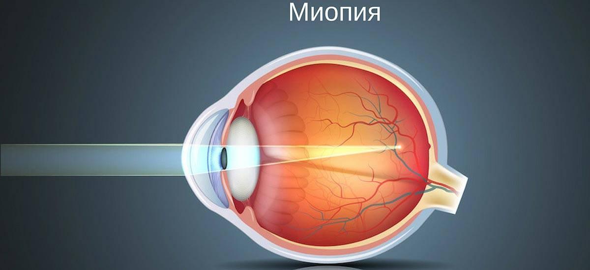 Причины близорукости (миопии), возникновение и развитие близорукости.