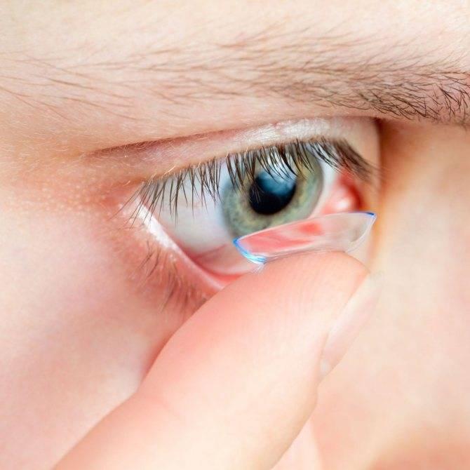 6 основных причин, по которым болят глаза после контактных линз, а также способы устранения дискомфорта
